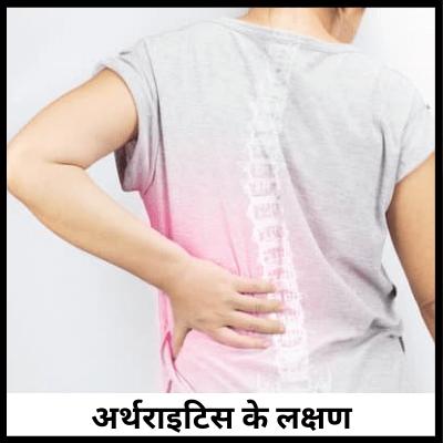 अर्थराइटिस के लक्षण, घुटने दर्द की दवा