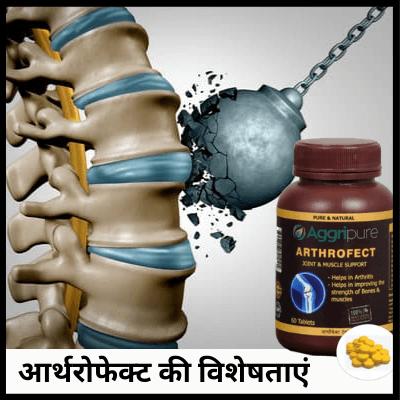 आर्थरोफेक्ट की विशेषताएं, घुटने दर्द की दवा